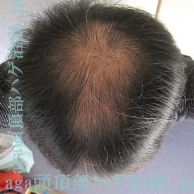 頭頂部薄毛画像