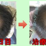 AGA治療30日目の日記 1ヶ月経過の写真を公開!ミノキシジルを2倍に