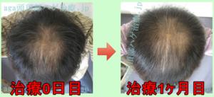 AGA治療1ヶ月目写真