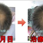 AGA治療60日目の日記 2ヶ月経過の写真公開!
