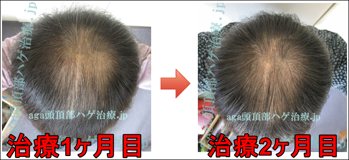 AGA頭頂部治療60日目の写真