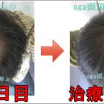 AGA治療100日目の日記 やっぱり薄毛が回復してきてます!