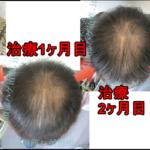 AGA治療90日目の日記 頭頂部の髪増えてます。抜け毛は完璧に減りました!