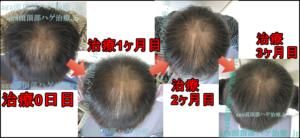 AGA頭頂部治療90日目写真