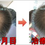 AGA治療80日目の日記 頭頂部の髪が増えてきました!
