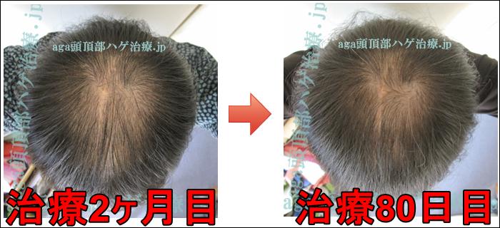 AGA頭頂部治療80日目の写真