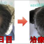 AGA治療120日目の日記 てっぺんハゲ回復中!