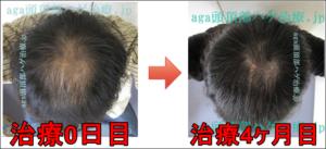AGA頭頂部治療4ヶ月経過写真