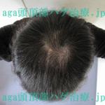 AGA治療4ヶ月