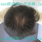 AGA治療5ヶ月