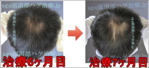 AGA頭頂部治療7ヶ月写真