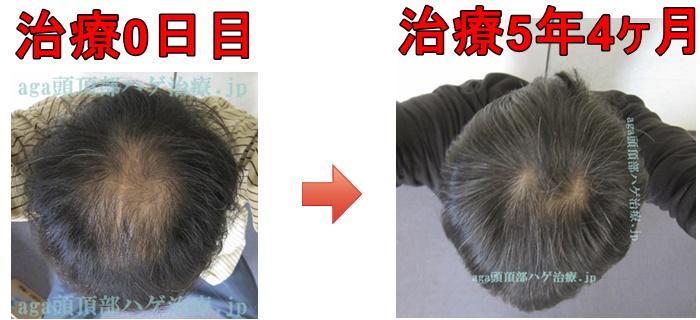 AGA治療の比較画像