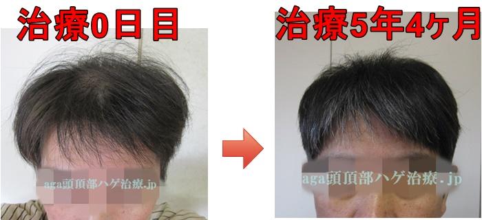 AGA治療の比較写真