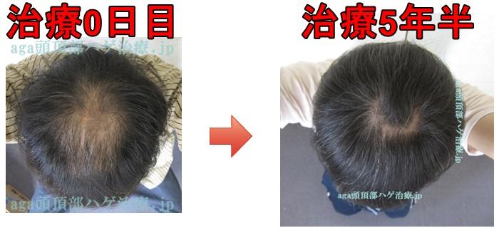 薄毛治療5年半の比較画像