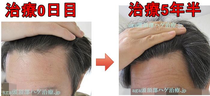 生え際の薄毛治療比較画像