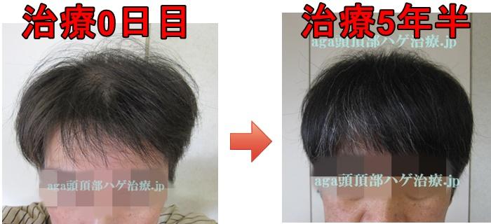 M字の薄毛比較画像