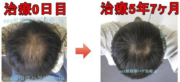 頭頂部の薄毛 比較薄毛画像