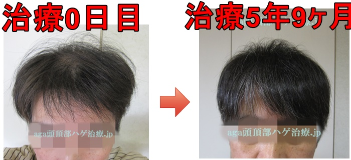M字の薄毛比較写真