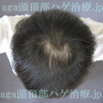 AGA治療9ヶ月