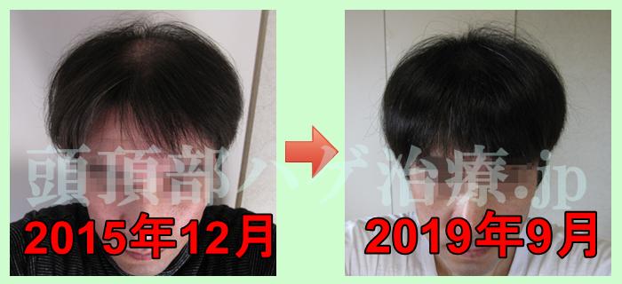 AGA治療270日