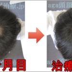 AGA治療270日目の日記 再び髪が増えてきてます!