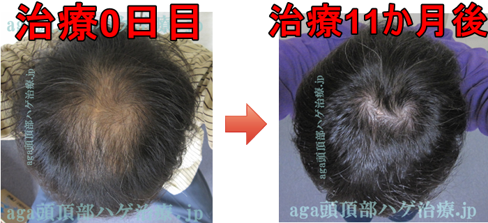 AGA治療11ヶ月比較写真