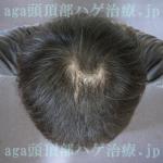 AGA治療10ヶ月