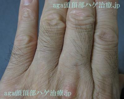 濃くなった指毛の写真