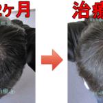 AGA治療390日目の日記 生え際の毛が成長してきました!