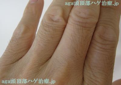 指毛の写真