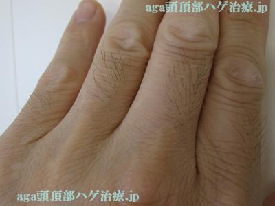 指の毛写真