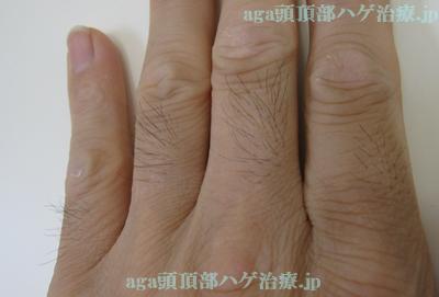 今月の指毛