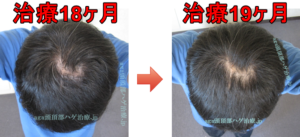 AGA頭頂部治療19ヶ月
