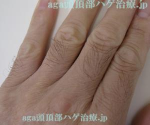 AGA治療指毛
