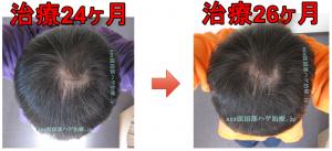 AGA治療写真比較