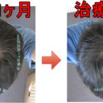 AGA治療2年8か月の日記 頭頂部けっこう復活してきました