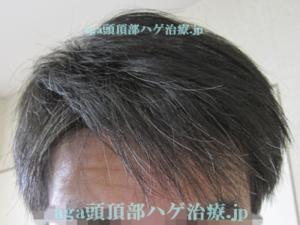 白髪染めシャンプーレビュー画像
