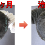 AGA治療3年のまとめ 薄毛改善は早期発見 早期治療が超重要