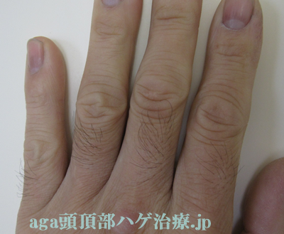 手の指毛画像