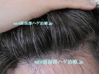 前髪の白髪画像