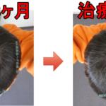 AGA治療3年3ヶ月の日記、頭頂部少し改善してきました♪