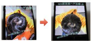 AGA治療写真