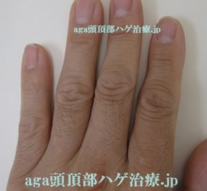 指の毛画像