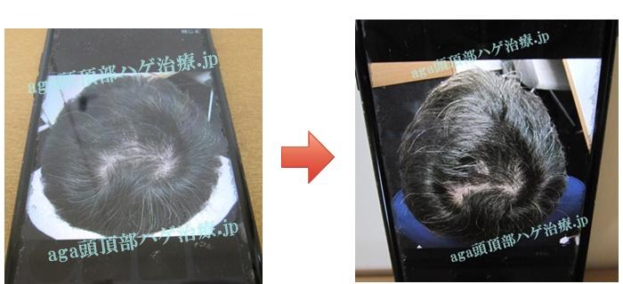 薄毛治療比較写真