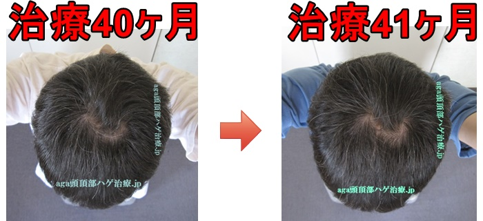 AGA治療3年5ヶ月画像
