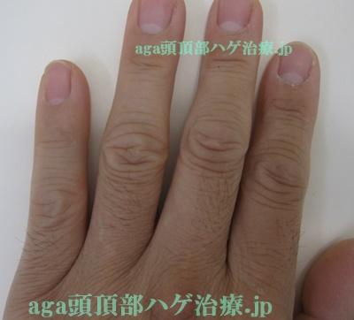 ミノキシジルの副作用で濃くなった指毛