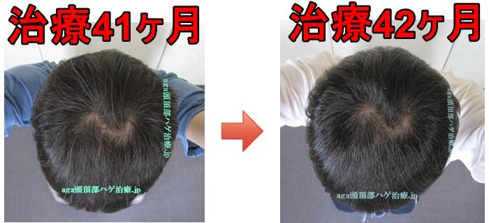 AGA治療3年半比較画像
