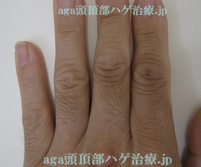 AGA治療薬の副作用で濃くなった指毛