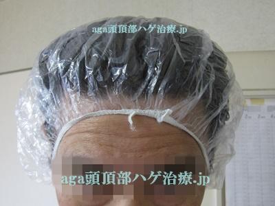 白髪染めのヘアキャップ