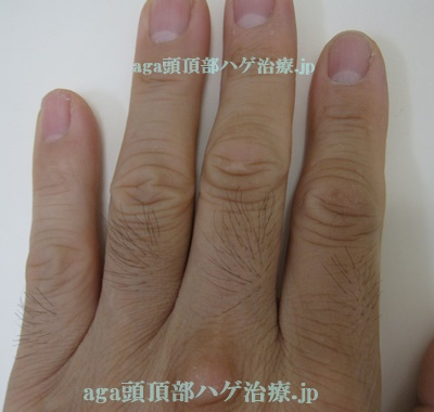 ミノキシジルの副作用で濃くなった指の毛
